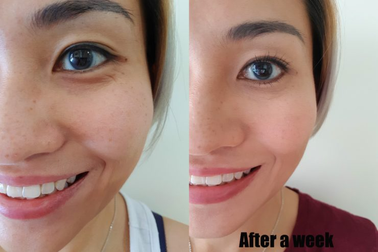 Crows Feet Botox With Sl Clinic Delishar Singapore Cooking Blog