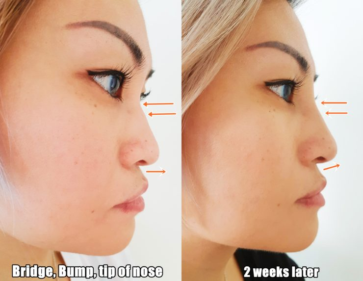 Non-surgical Nose Job with SL Clinic | Delishar - Singapore