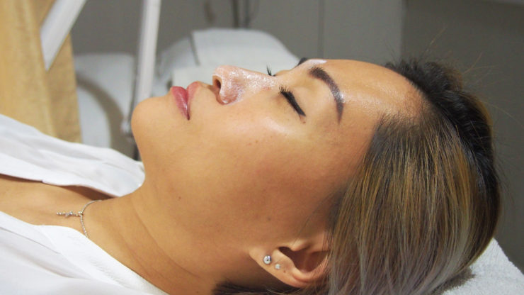 Non-surgical Nose Job with SL Clinic | Delishar - Singapore Cooking Blog